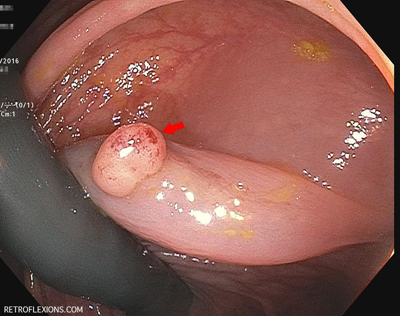 Retroflexed view in the ascending colon: Red arrow shows a polyp behind a fold. The lesion was injected with saline (prior to taking this picture), and then removed with a hot snare.