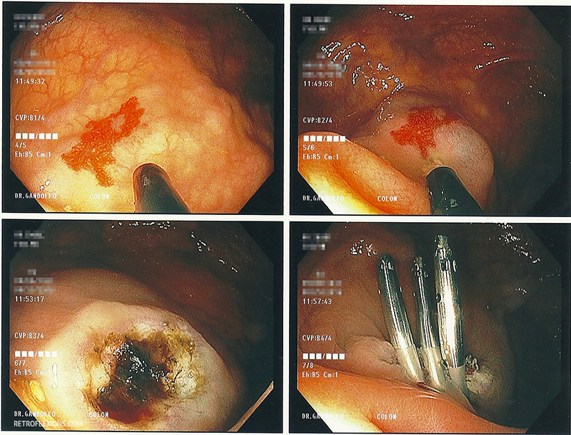 Treatment of cecal angiodysplasia with APC. The lesion is injected with saline (the ileocecal valve can be seen in the second picture). After injection, APC is used to ablate the lesion. A few clips were placed since the patient needed multiple blood-thinning agents.