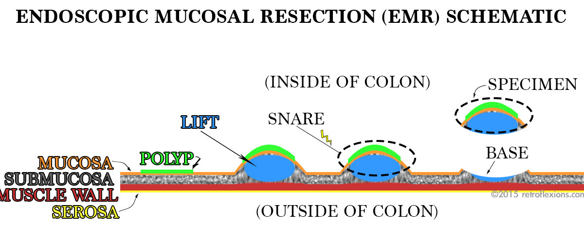 Retroflexions Com Intro To Endoscopic Mucosal Resection Emr