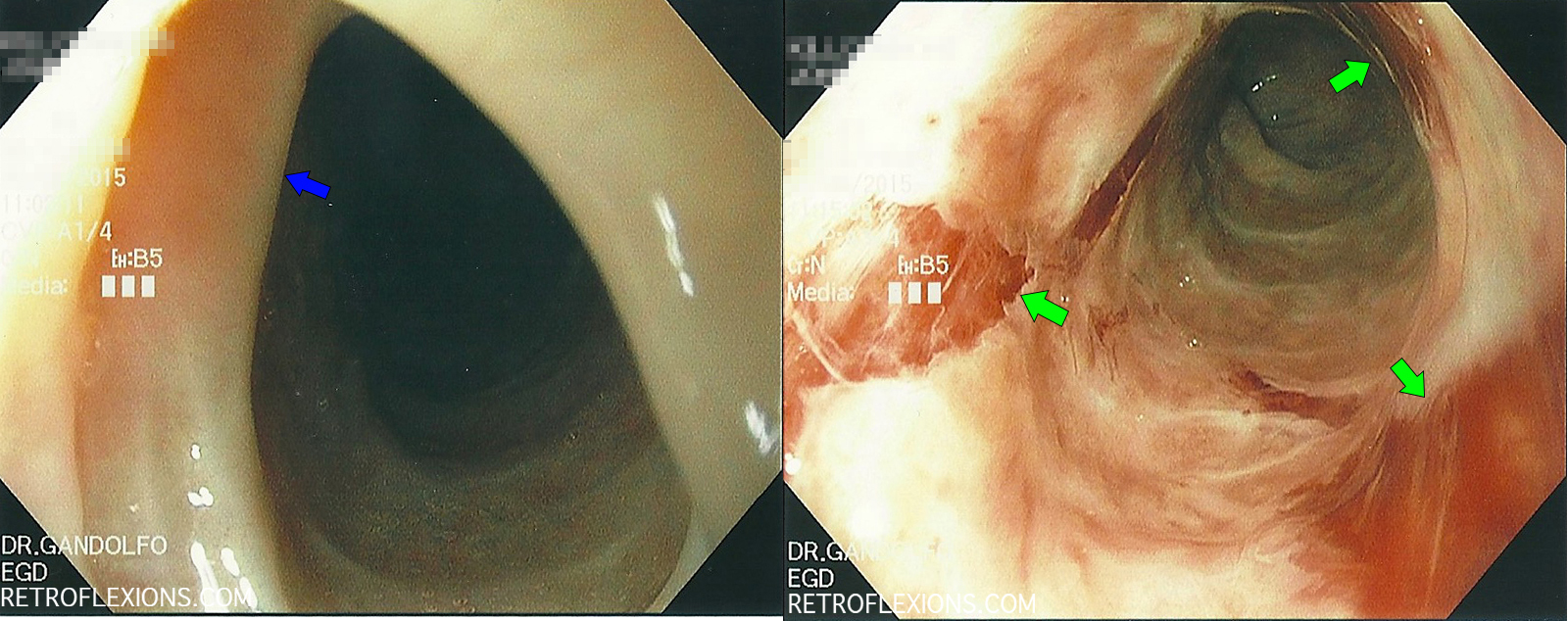 (L): tight stricture (blue arrow) would not let scope pass; (R): after dilation multiple large mucosal tears are seen (green arrows). Bleeding is self-limited and minor.