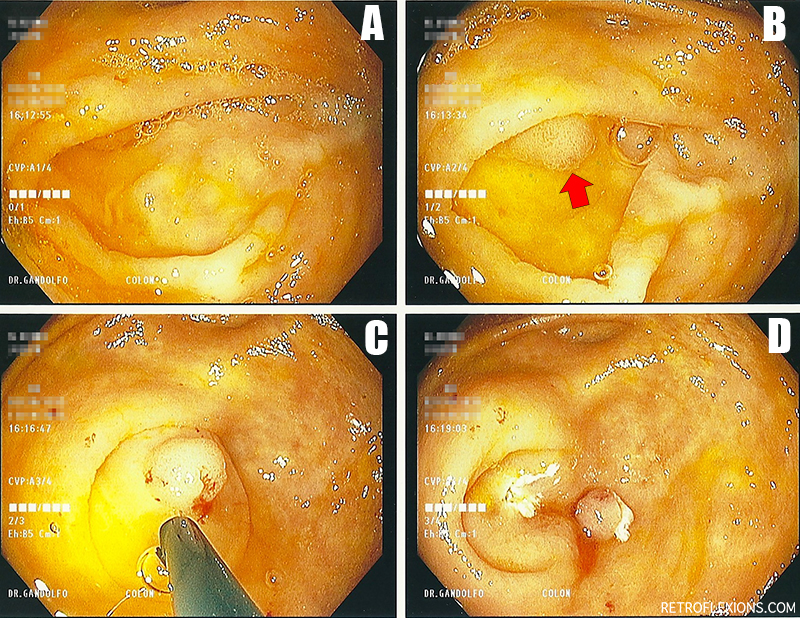 A: original appearance; B: red arrow shows polyp; C: saline is injected to raise the polyp out of the appendiceal orifice (important to note that the entire polyp is visible and none is hidden inside the appendiceal orifice after lifting); D: after a hot snare is used to resect the polyp (note the white cauterized base of the polyp site, and the resected polyp sitting nearby).