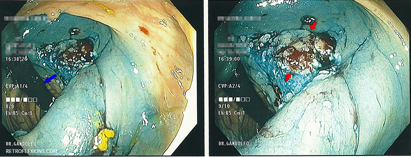 Retroflexed view of the polyp base: (L) Blue arrow shows the colonoscope; (R) Red arrows show the remaining polyp tissue.